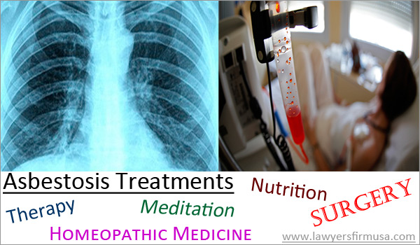 Asbestosis Treatment