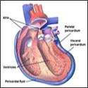 Pericardial mesothelioma (heart)