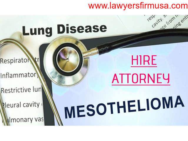 SWMW Law – Get Free Legal Consultation for Mesothelioma Victims