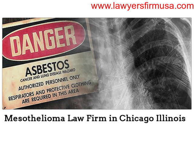 Pullano Law Offices – Consult with the Best Mesothelioma Attorneys